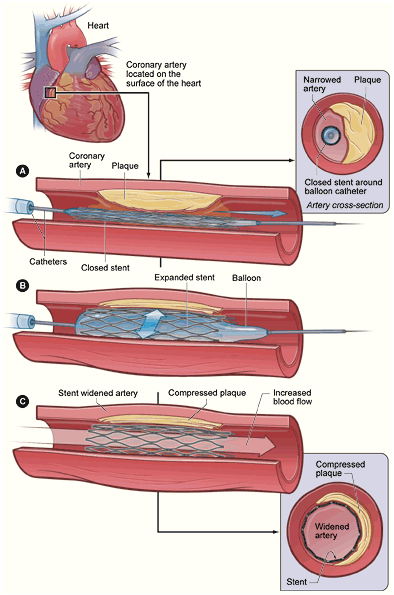 Angioplasty With Stent Placement