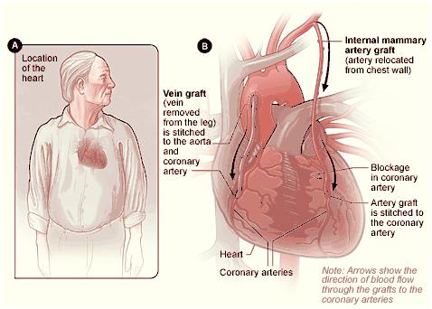 Coronary Artery Bypass Grafting