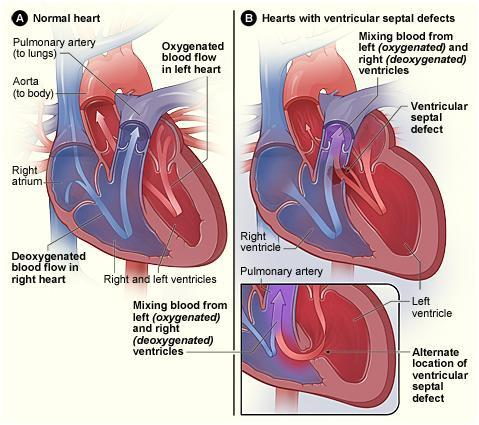 With a Ventricular Septal Defect