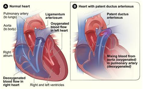 Heart With Patent Ductus Arteriosus